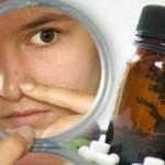 Tratamiento del acné con homeopatía
