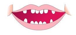 Primeros dientes del bebe 12 a 18 meses
