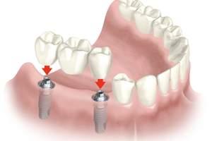 Los implantes dentales: ventajas y desventajas