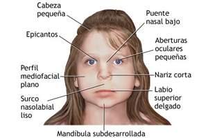 Síndrome alcoholico fetal caracteristicas fisicas