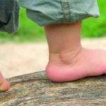 Cómo saber si mi hijo tiene los pies planos: síntomas, consecuencias, corregir