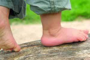 Cómo saber si mi hijo tiene los pies planos